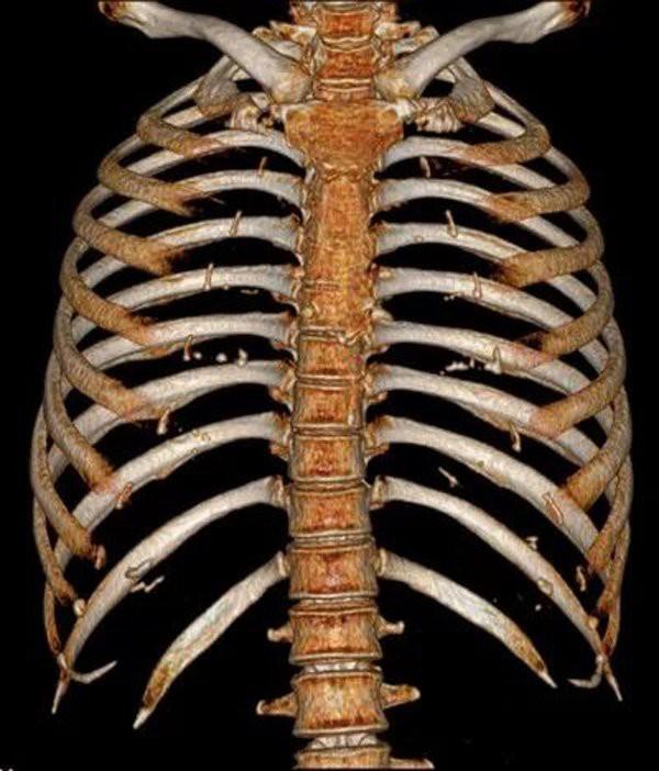 Xiaoxia được phát hiện bị gãy hai xương sườn.