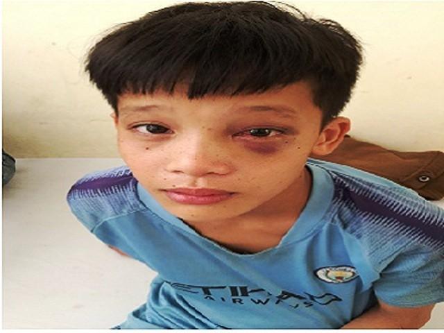 Phẫu thuật lấy lấy 3 đinh bằng kim loại ghim chặt vào hốc mắt - Ảnh 2.