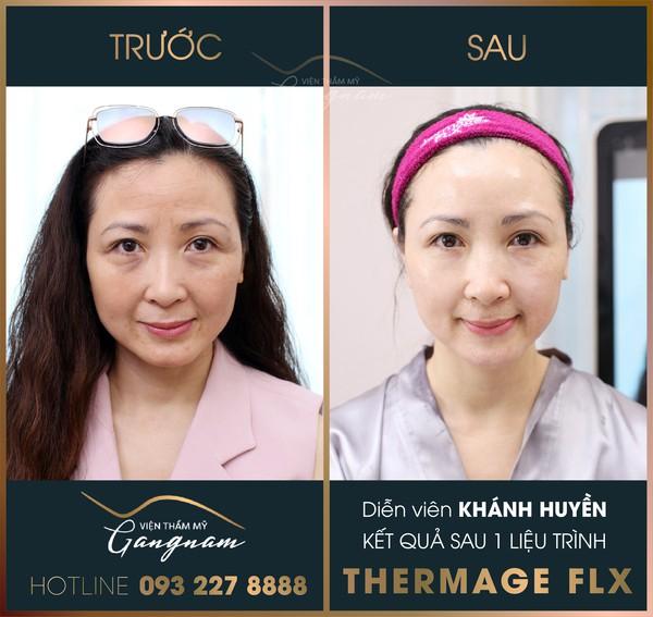 Diễn viên Khánh Huyền sau khi thực hiện liệu trình Thermage FLX tại Viện thẩm mỹ Gangnam
