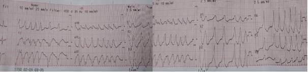 Hình ảnh điện tâm đồ bệnh lý rung nhĩ kết hợp hội chứng kích thích sớm của bệnh nhân.