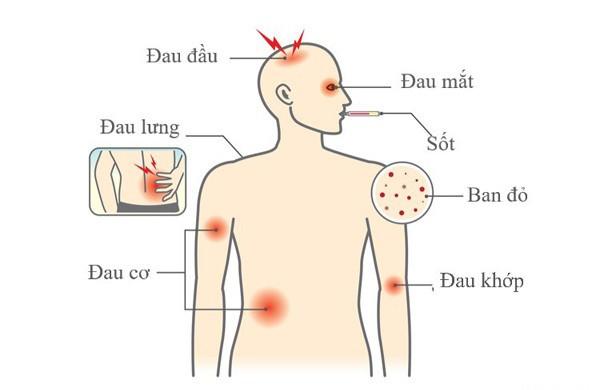 Triệu chứng dễ nhầm sốt xuất huyết và sốt thường, để lâu nguy hiểm tính mạng - Ảnh 2.