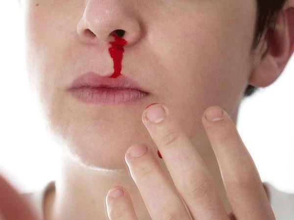 Triệu chứng dễ nhầm sốt xuất huyết và sốt thường, để lâu nguy hiểm tính mạng - Ảnh 3.