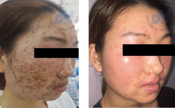 Cô gái trẻ chết lặng vì mặt sùi như tổ ong sau 2 lần dùng bột rửa mặt mua online - Ảnh 1.