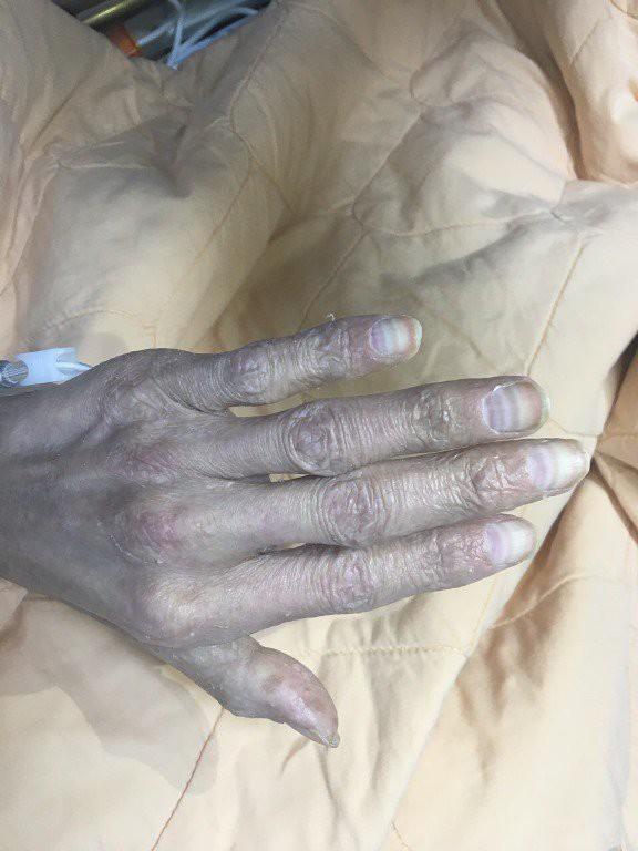 Người đàn ông bị ngộ độc thạch tín, suýt chết vì thói quen xông nhà lấy may gần 10 năm  - Ảnh 2.