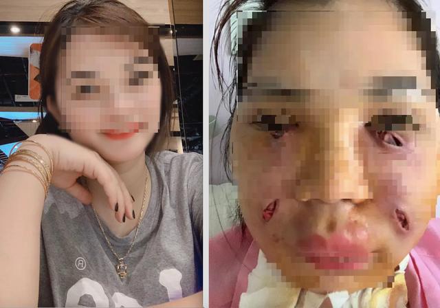 Rạch nhiều vết trên mặt để cứu cô gái trẻ ở Hà Nội tiêm mỡ tự thân làm đẹp - Ảnh 1.