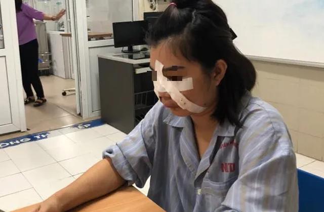 Rạch nhiều vết trên mặt để cứu cô gái trẻ ở Hà Nội tiêm mỡ tự thân làm đẹp - Ảnh 2.