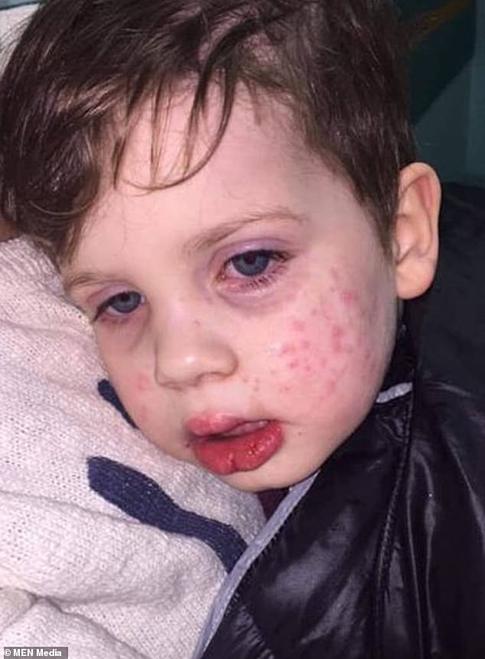 Bé trai 3 tuổi nhiễm virus bệnh tình dục sau nụ hôn vào má  - Ảnh 1.