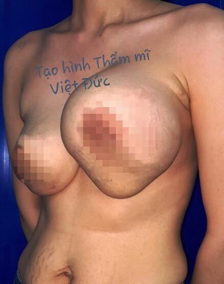 Nhìn hình ảnh biến chứng nâng ngực kinh dị này, những người dưới đây đừng nghĩ đến nâng ngực - Ảnh 1.