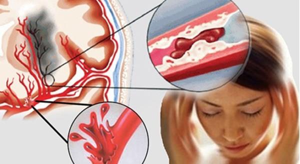 5 dấu hiệu cảnh báo chứng tắc mạch máu, đề phòng tử thần gõ cửa, nguy hiểm nhất là số 1 - Ảnh 1.