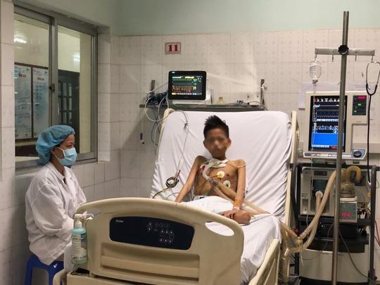 Thiếu niên 17 tuổi nặng 30 kg được ghép phổi với chi phí 5 tỷ đồng - Ảnh 1.
