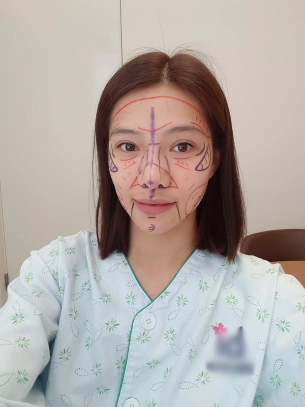 Lưu Đê Ly khoe trải qua 6 ca phẫu thuật ở Hàn để đập mặt làm lại, đẹp hay không chưa bàn chỉ biết là quá dũng cảm rồi! - Ảnh 2.