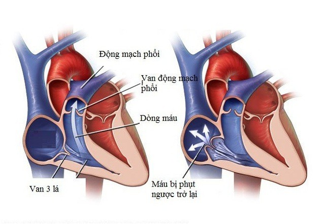 Căn bệnh hở van tim ca sĩ Tuấn Hưng mắc phải nguy hiểm thế nào? - Ảnh 2.