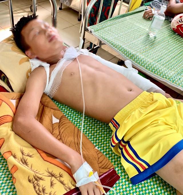 Nổ chùm bóng bay, 4 người bị bỏng nhập viện - Ảnh 1.