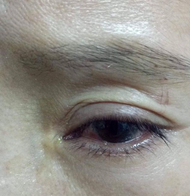 Gỡ chim cò dính bẫy, người phụ nữ ở Hà Tĩnh bị mổ rách giác mạc - Ảnh 2.