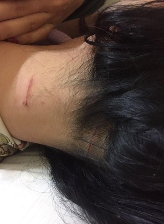 Người phụ nữ kể lại sự việc bị chồng cũ đánh đập dã man giữa đường - Ảnh 2.