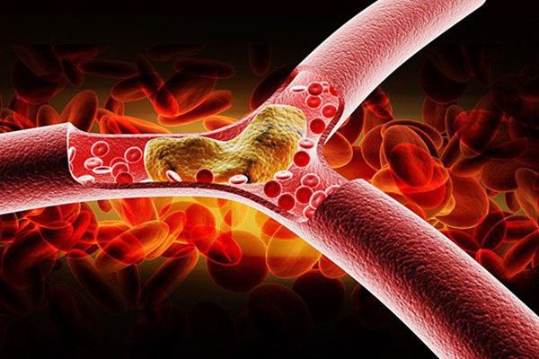 Cứ mắc 1 trong 4 dấu hiệu sau thì coi chừng mỡ máu đang tăng vọt, không vào viện ngay sẽ nguy hiểm đến tính mạng - Ảnh 1.