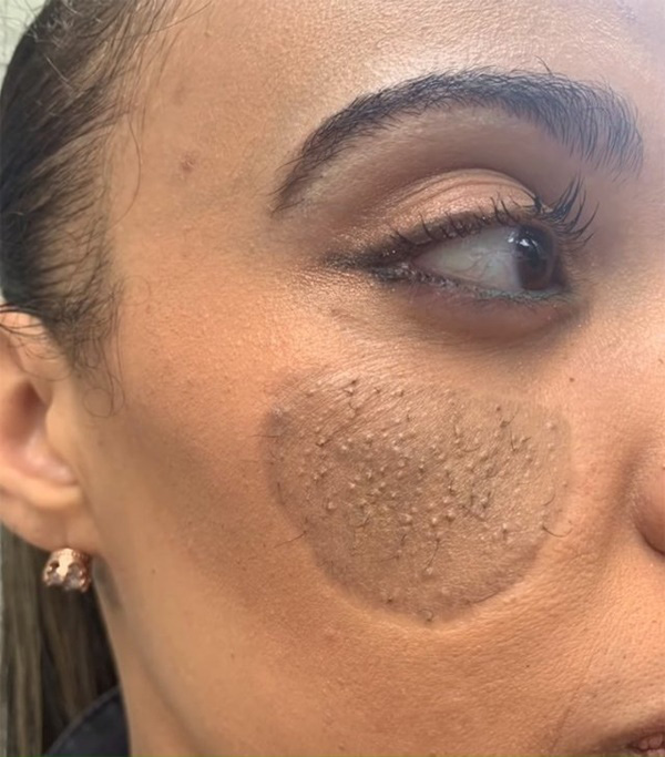 Lời kêu cứu của bà mẹ có mảnh da vùng kín trên mặt - Ảnh 1.