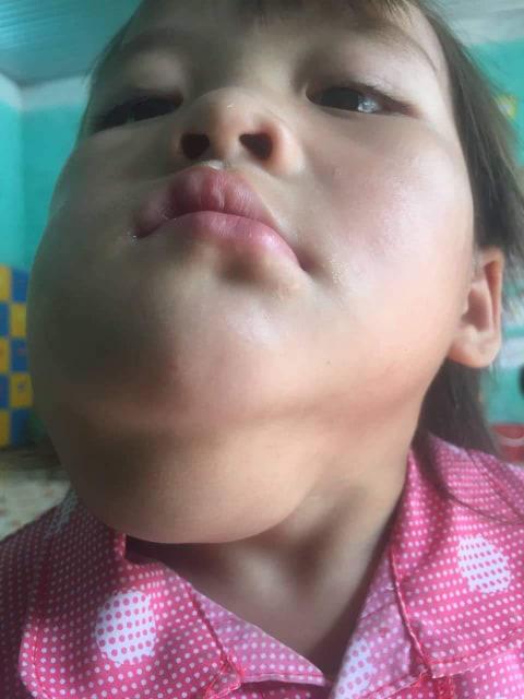 Xót thương bé gái vùng cao mồ côi mẹ, gương mặt méo lệch, nhà nghèo không có tiền chữa trị - Ảnh 1.