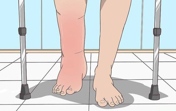 Nguy cơ suy thận rất cao nếu cơ thể của bạn xuất hiện từ 1 đến 4 triệu chứng khác lạ - Ảnh 1.