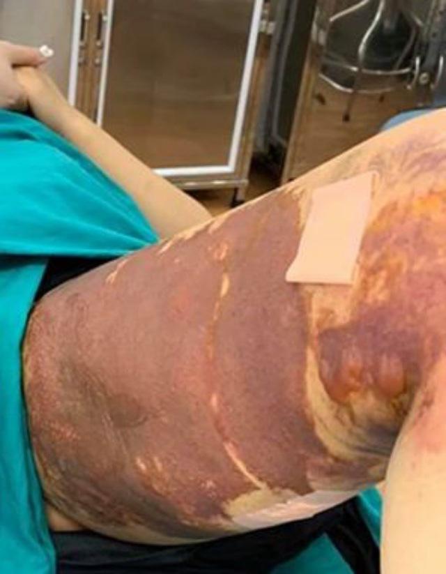 Cô gái trẻ nhập viện vì hoại tử nghiêm trọng vùng đùi vì hút mỡ tại Thẩm mỹ viện Viện - Hàn - Ảnh 2.