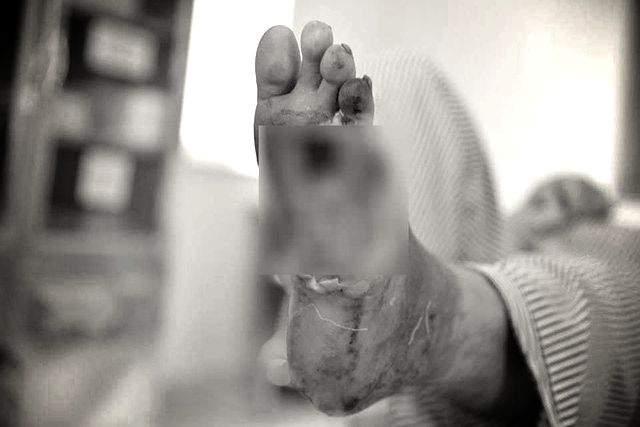 Điều chưa biết về căn bệnh đáng sợ hành hạ NS Chánh Tín hơn chục năm trước khi đột ngột qua đời sáng nay - Ảnh 1.