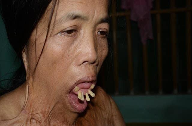 Chuyện chưa biết về hành trình làm lại khuôn mặt của người phụ nữ 50 năm không ngậm được miệng - Ảnh 1.