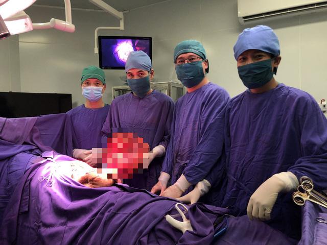 Bật mí ca phẫu thuật đặc biệt cắt khối u khổng lồ gần 9kg đầu tiên ở Quảng Ninh - Ảnh 3.