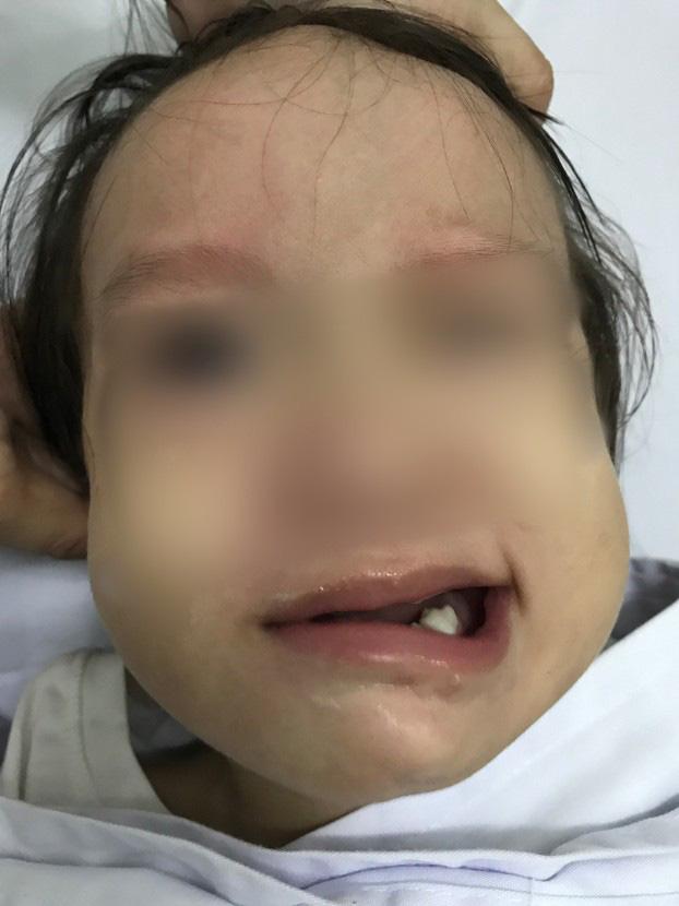 Bé B. đột ngột bị liệt mặt sau khi chảy mũi, ngạt mũi.