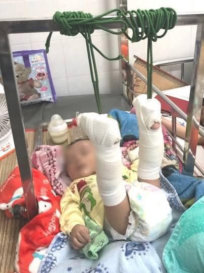Làm giấy khai sinh cho bé 4 tháng bị bố đánh gãy chân: Mang họ mẹ, tên cha để trống - Ảnh 2.