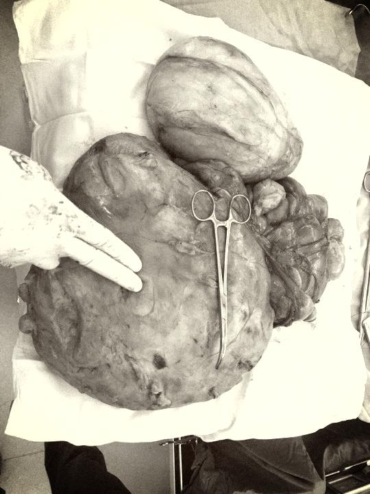 TP. HCM: Bóc khối u mỡ nặng 7,3 kg ra khỏi bụng nam thanh niên - Ảnh 1.