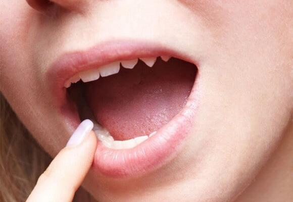 4 dấu hiệu cảnh báo bệnh sau khi uống nước, nếu có cần khám gấp - Ảnh 2.