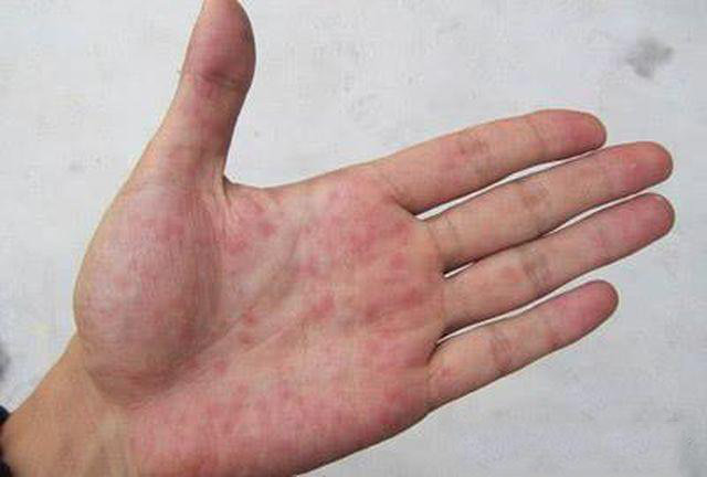Nếu ngón tay xuất hiện những dấu hiệu này, cảnh giác ngay vì có thể bạn mắc ung thư phổi  - Ảnh 2.
