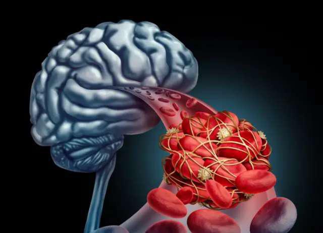 Nhồi máu não đến quá nhanh, nhận biết được 5 triệu chứng bạn sẽ tự cứu sống mình - Ảnh 1.