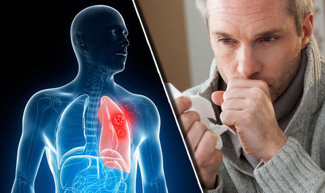 5 triệu chứng điển hình của bệnh ung thư phổi - Ảnh 1.