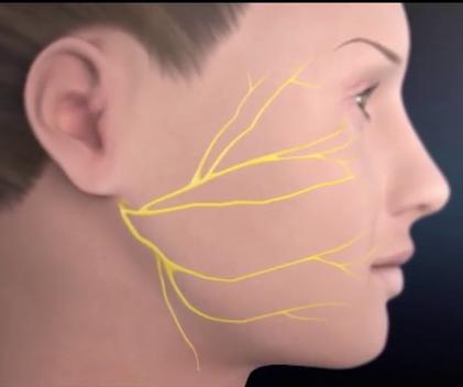 Ngày nay chỉ 30 phút là thoát chứng gió thổi vào mặt cũng đau giật nửa mặt và lấy lại khuôn mặt cân đối - Ảnh 2.