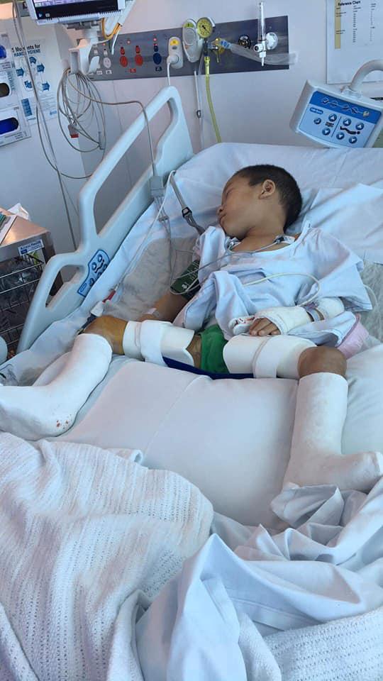 Cậu bé nghèo với đôi chân khoèo ở vùng cao đã đạp được xe sau khi được sáng Úc chữa trị - Ảnh 3.