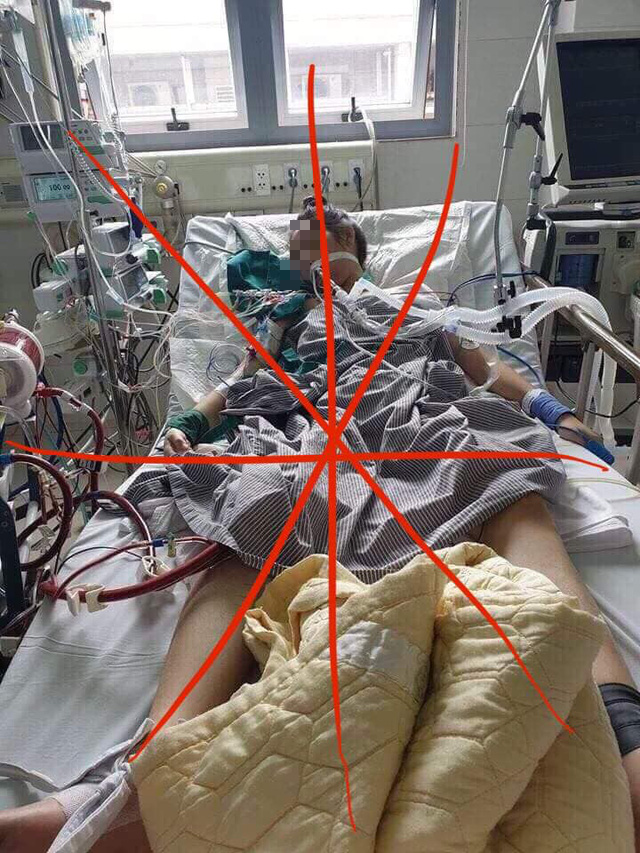Bệnh nhân thứ 17 sức khỏe đã ổn định, không phải nguy kịch như tin đồn - Ảnh 3.