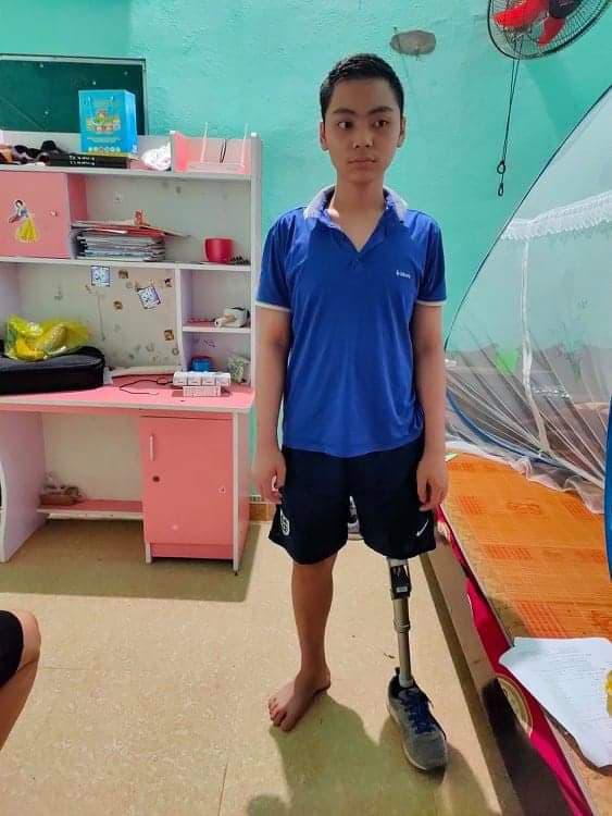 Mẹ cậu bé bị cắt chân vì ung thư xương gửi lời cảm ơn đến bạn đọc Vòng tay nhân ái - Ảnh 2.