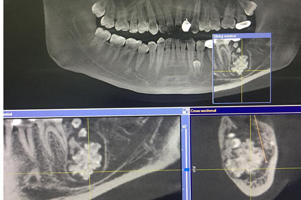 Bác sĩ gắp răng lúc nhúc trong miệng nam thanh niên Hà Nội - Ảnh 1.