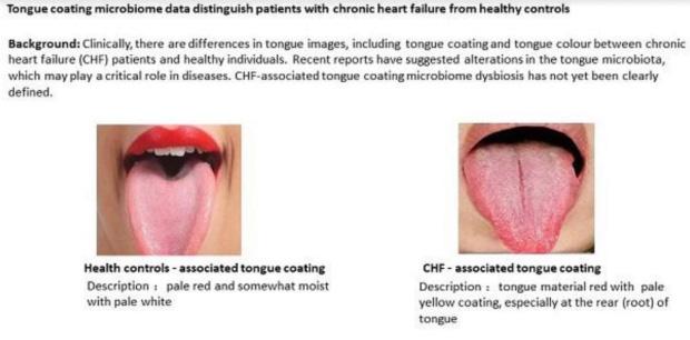 Chuyên gia cảnh báo: Đặc điểm này ở lưỡi là dấu hiệu nhận biết bệnh tim nguy hiểm - Ảnh 1.