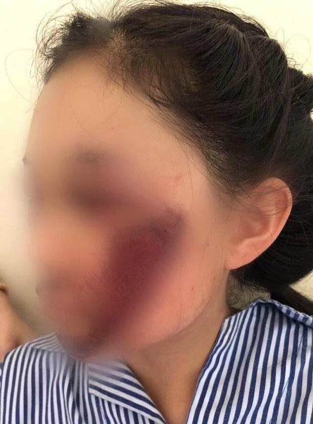 Áo chống nắng cuốn vào bánh xe khiến nữ sinh tổn thương mặt nghiêm trọng - Ảnh 1.