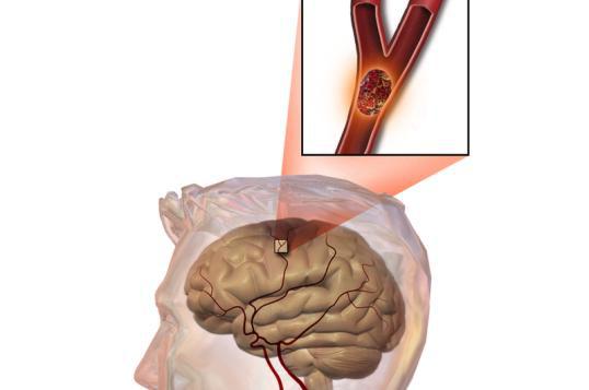 Tại sao hàng triệu người bị đột quỵ nhồi máu não dùng Nattospes hiệu quả? - Ảnh 1.