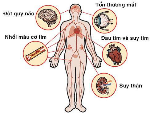 Xu hướng mới giúp hỗ trợ cải thiện tăng huyết áp vô căn nhờ Định Áp Vương - Ảnh 2.