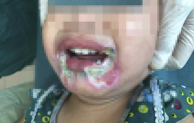 Bé gái 2 tuổi bỏng nặng vùng miệng do cắn dây điện, cảnh báo sự bất cẩn của người lớn vô tình hại trẻ - Ảnh 2.