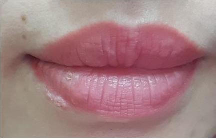 Xăm môi được 3 ngày thì bị mụn rộp herpes ở môi, 2 tuần sau tổn thương toàn thân: 3 nguy cơ có thể gặp sau khi phun xăm bác sĩ muốn mọi người cần biết  - Ảnh 1.
