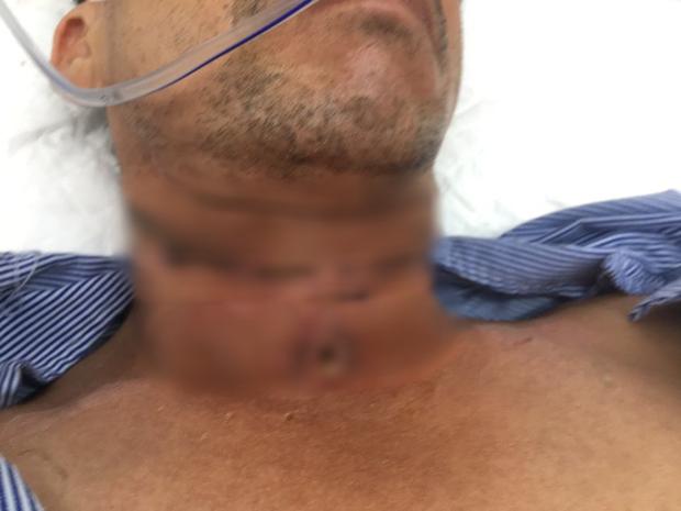Người đàn ông bị dây diều cắt ngang vùng cổ, suýt mất mạng - Ảnh 1.