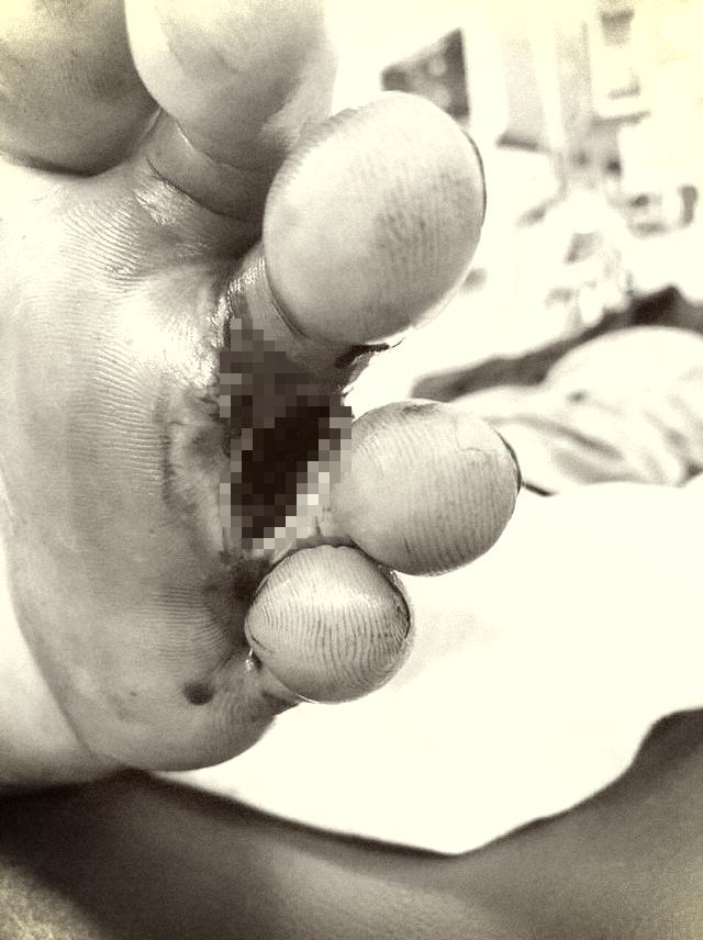 Bệnh Whitmore từng bị đồn ăn thịt người tái xuất  - Ảnh 2.