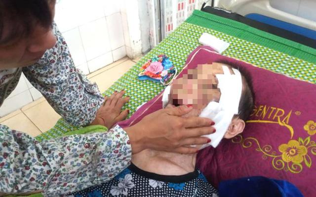 Đau lòng: Con trai đánh mẹ đẻ 84 tuổi ở Hải Dương nhập viện cấp cứu - Ảnh 1.