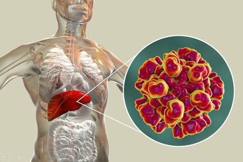 Sáu triệu chứng cảnh báo gan suy yếu, làm ngay ba điều để thải độc - Ảnh 1.