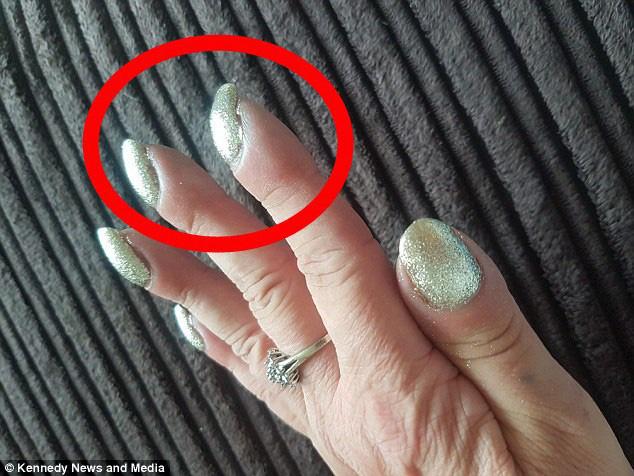 """4 dấu hiệu trên móng tay """"chỉ điểm"""" trong người bạn đang có mầm bệnh - Ảnh 2."""